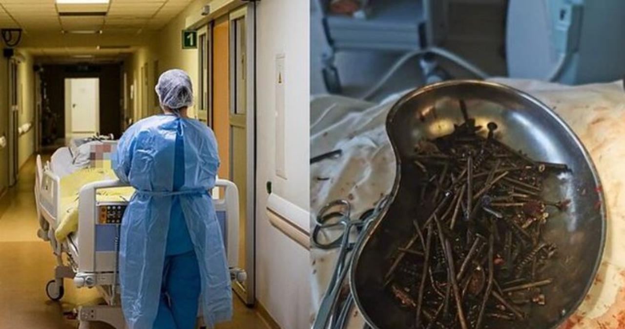 Kilogram gwoździ usuniętych z brzucha mężczyzny